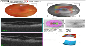 Acute Postoperative Cefuroxime Toxic Retinopathy with Macular Edema and Local Serous Retinal Detachment: 3 Cases Reported In Sweden