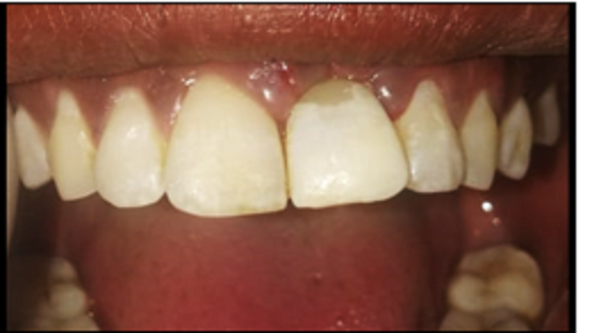Can Supportive Periodontal Therapy Control The Spread Of Covid-19?