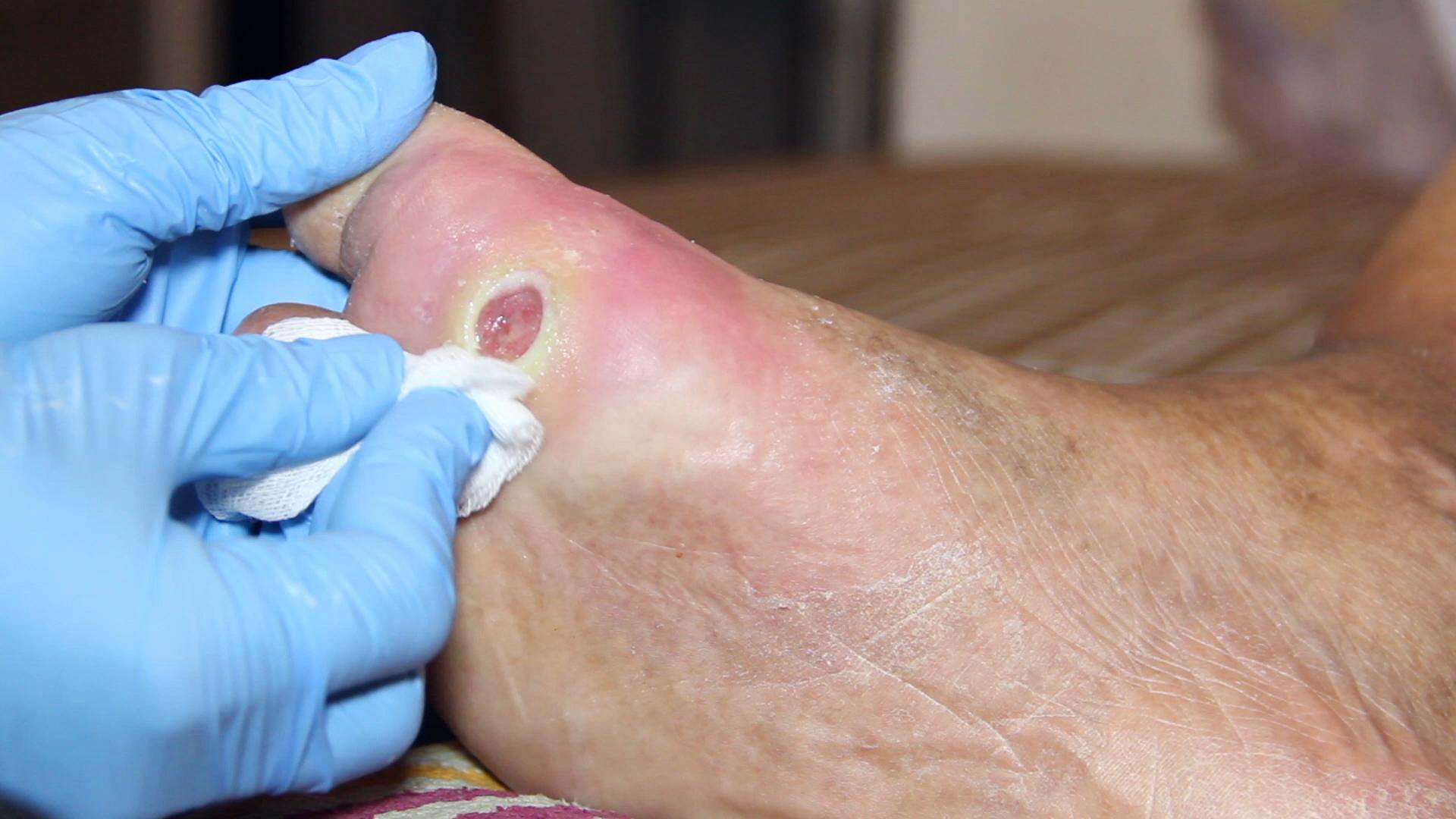 A Case of Pyoderma Gangrenosum (PG) Mistaken for DM Ulcer