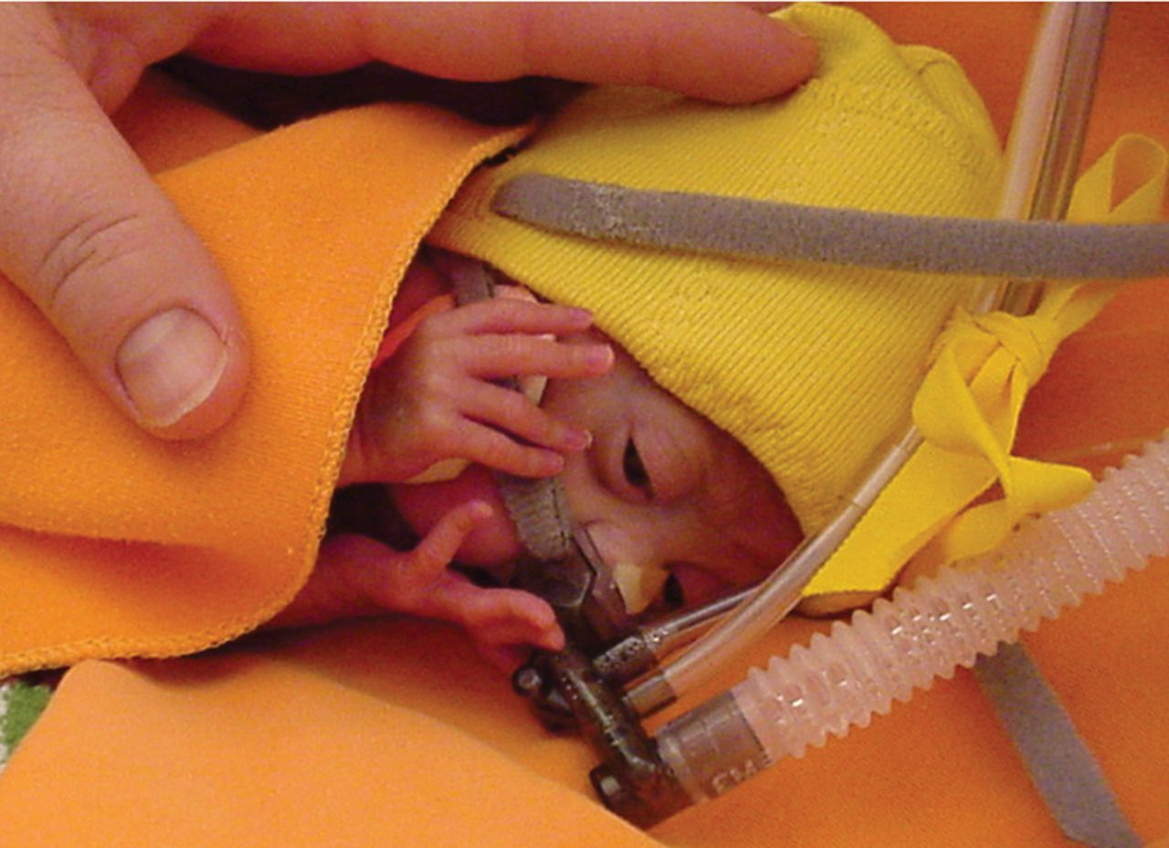 Physiological Neonatal Resuscitation at Birth