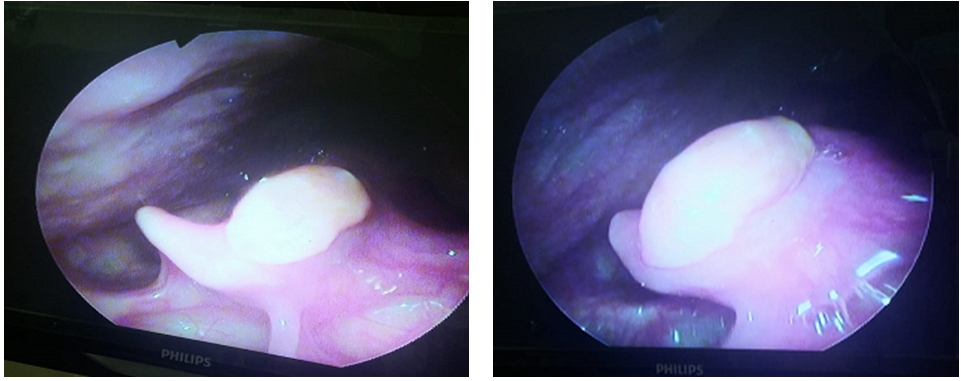 "The ""E"" Factor of Epiglottic Cyst: An Exceptionally Erratic Entity!!!"