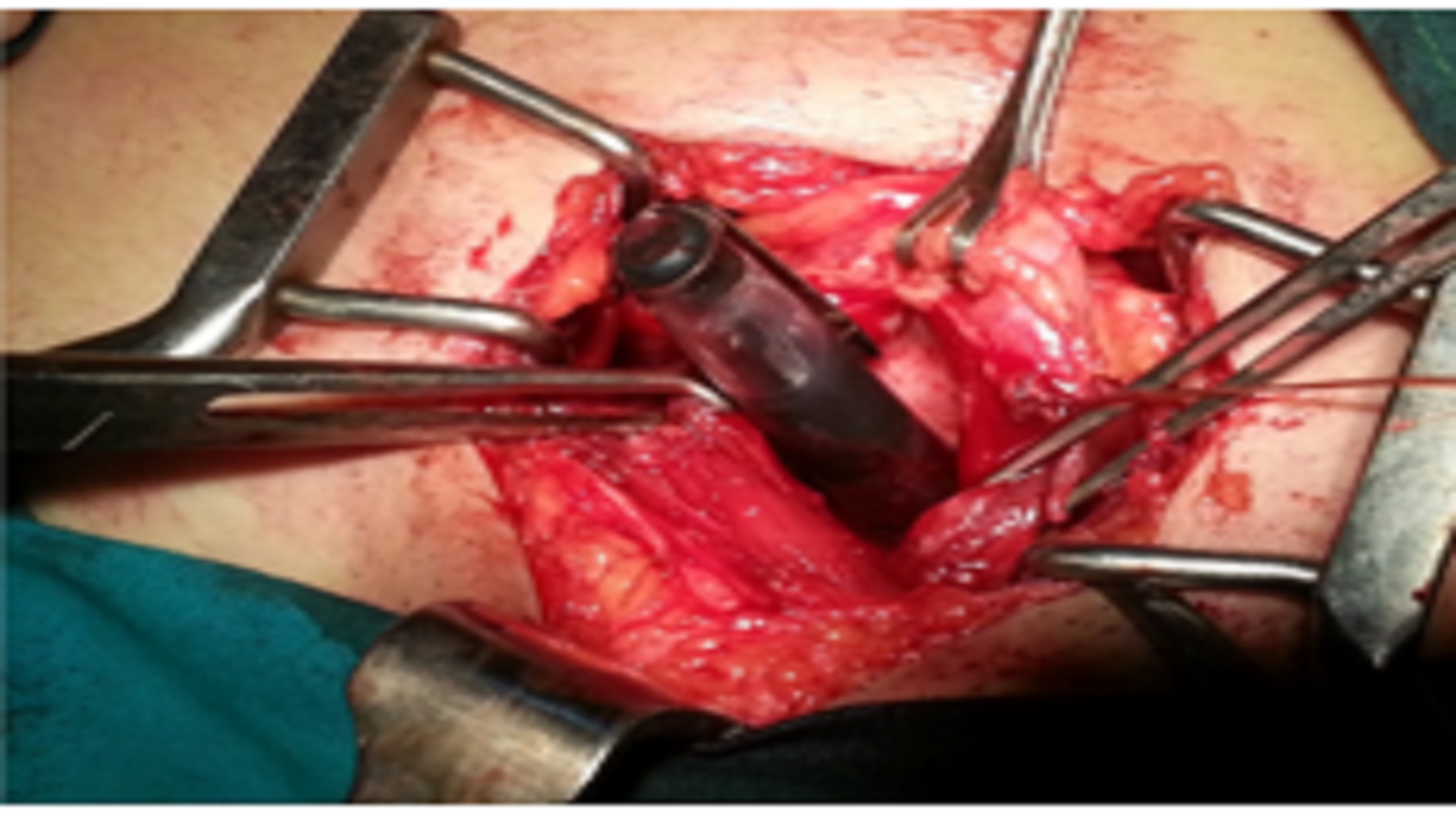 Intravesical Foreign Body Causing Acute Urinary Retention: A Case Report