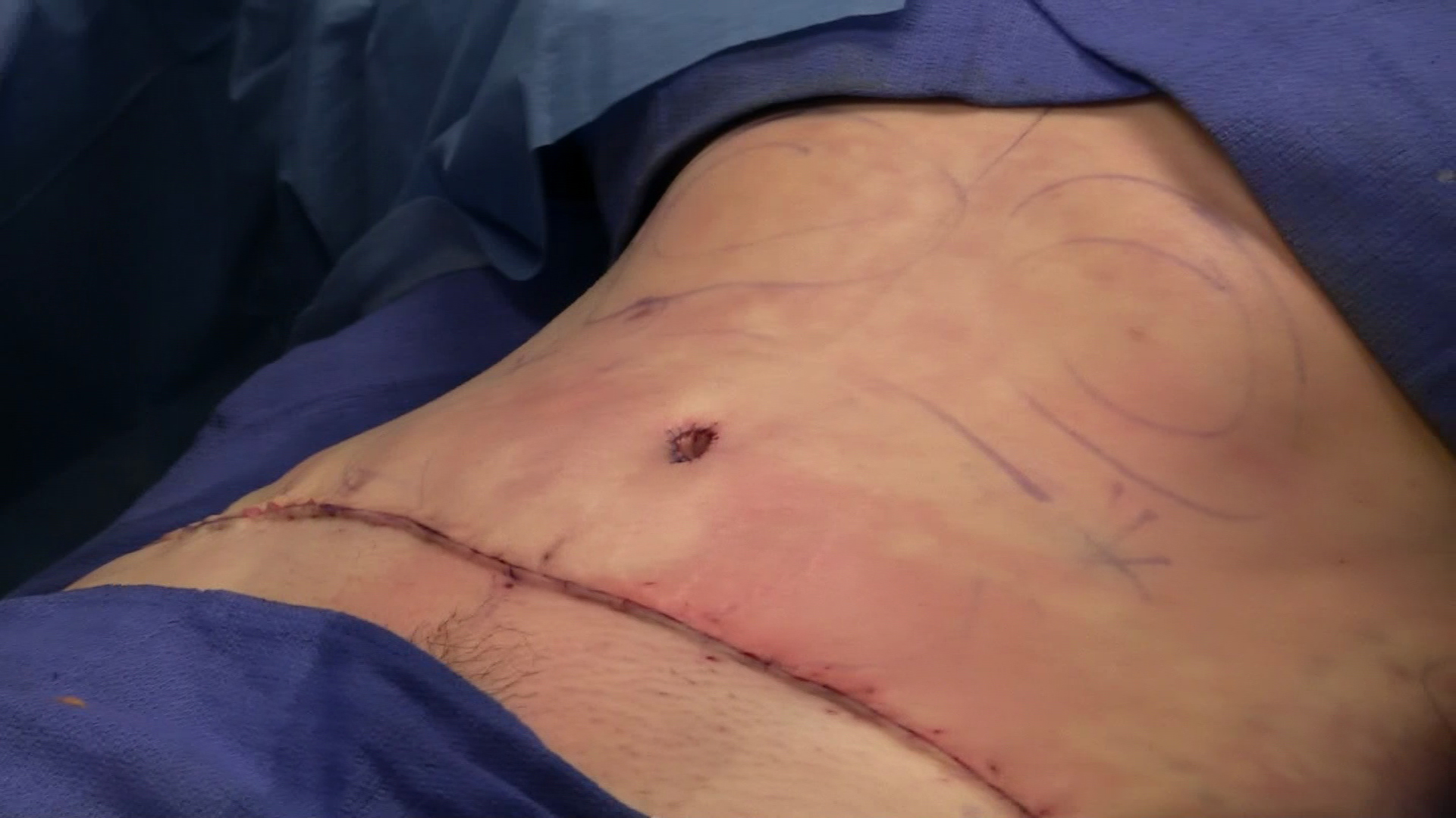 The Benefits of Liposuction Assisted Abdominoplasty (LAA) as An Enhanced Abdominoplasty Technique