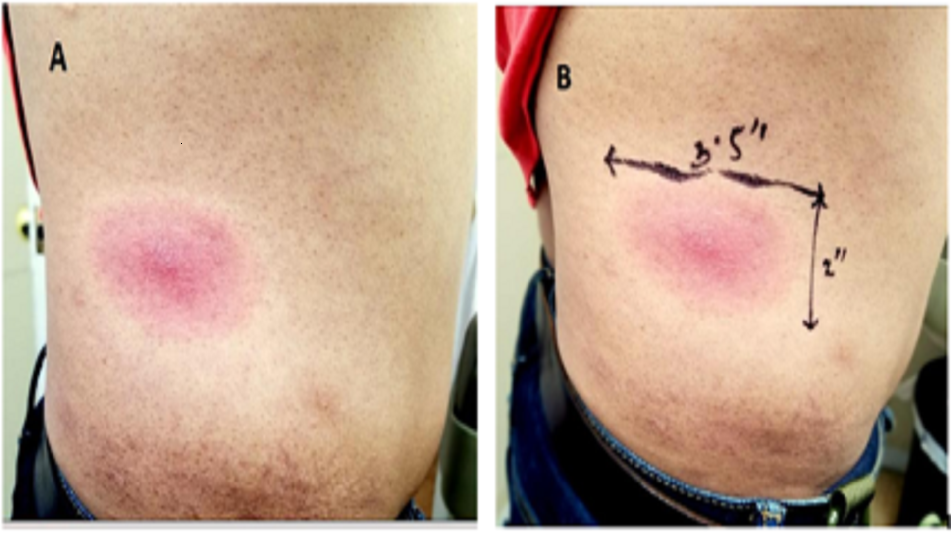 Erythema Migrans: Diagnostic Clue or Criteria for Lyme disease?