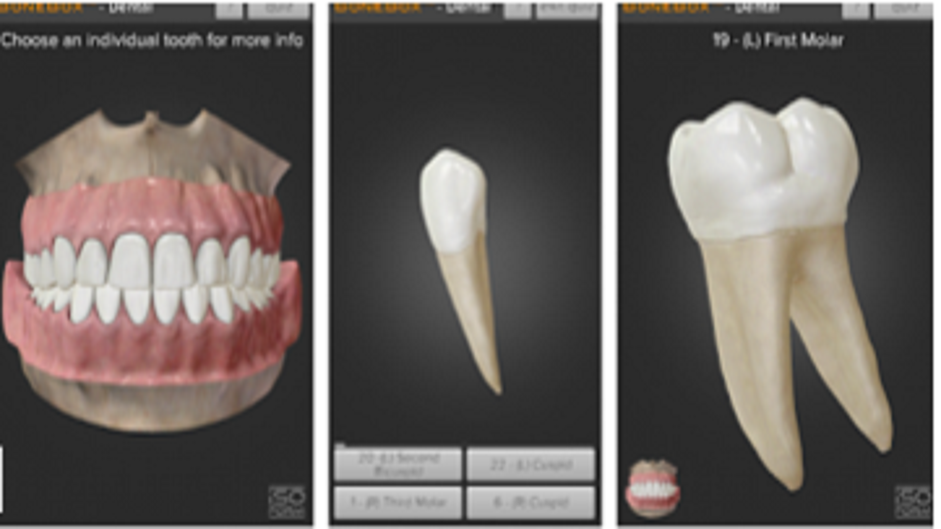 Benefits of New Augmented Reality Technologies in Dental Learning