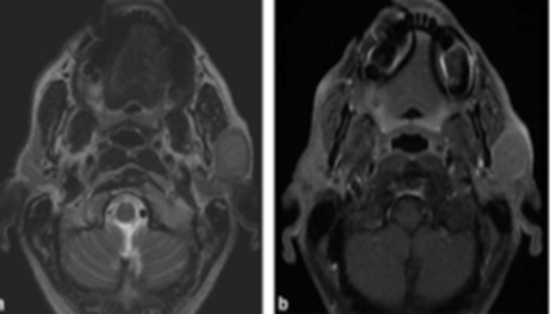 Ductal Carcinoma of the Parotid Gland: About Two Cases, And a Review of the Literature