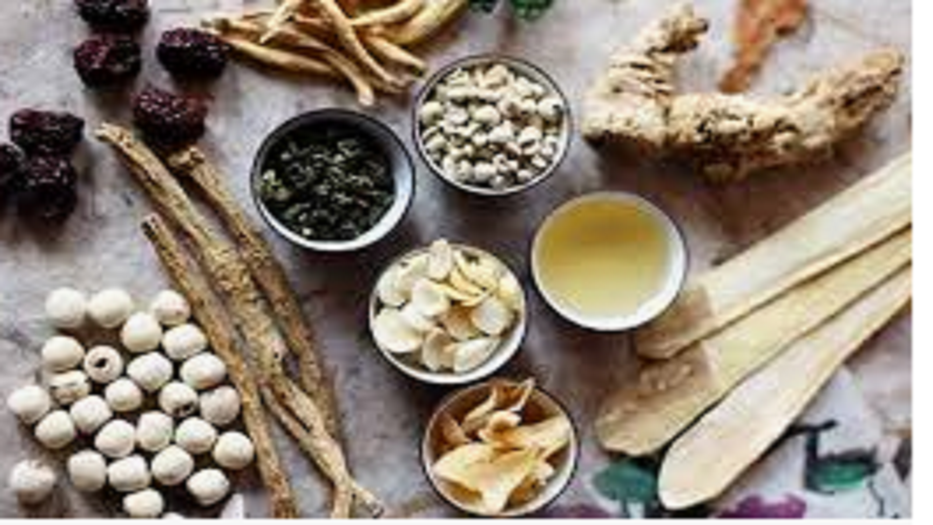 Clinical Application Of Combined Traditional Chinese Medicine (Tcm) For Warm Compression Of Umbilical Region In Promoting Postoperative Recovery Of Bowel Function In Patients With Bile Duct Stones
