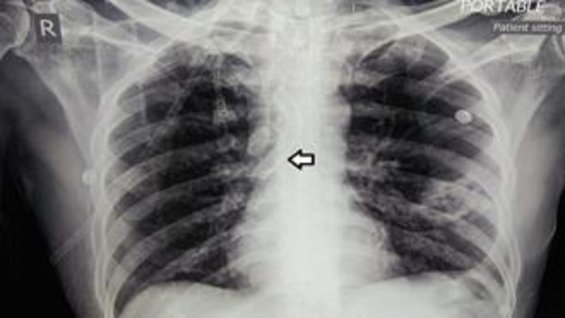 Aspiration of a Fractured Tracheostomy Tube Managed By a Rigid Bronchoscopy via Tracheostomy Stoma in a Patient with Existing Airway Compromise