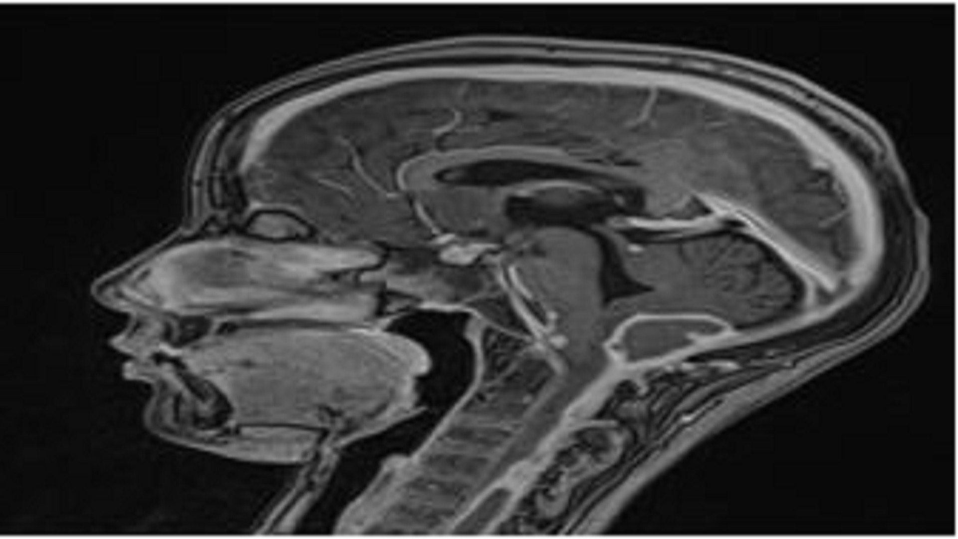 Epidural Tuberculous Abscess of the Posterior Cerebellar Fossa Extending To the Cervical Spine: An Unusual Form of Central Nervous System Tuberculosis in Children