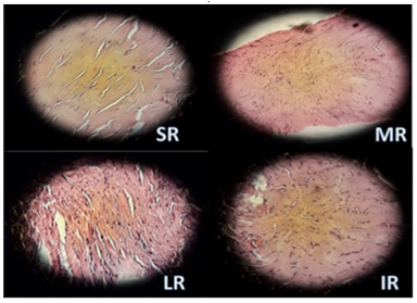 We Report an Unusual Case of Unilateral Strabismus in a Child Secondary to Congenitally Enlarged Extraocular Muscles with Surgical Photographs and Histopathologic Correlation