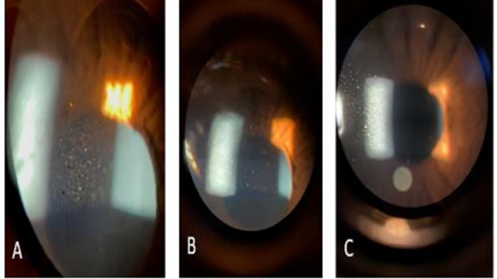 Laser Eyebrow Removal Induced Anterior Uveitis