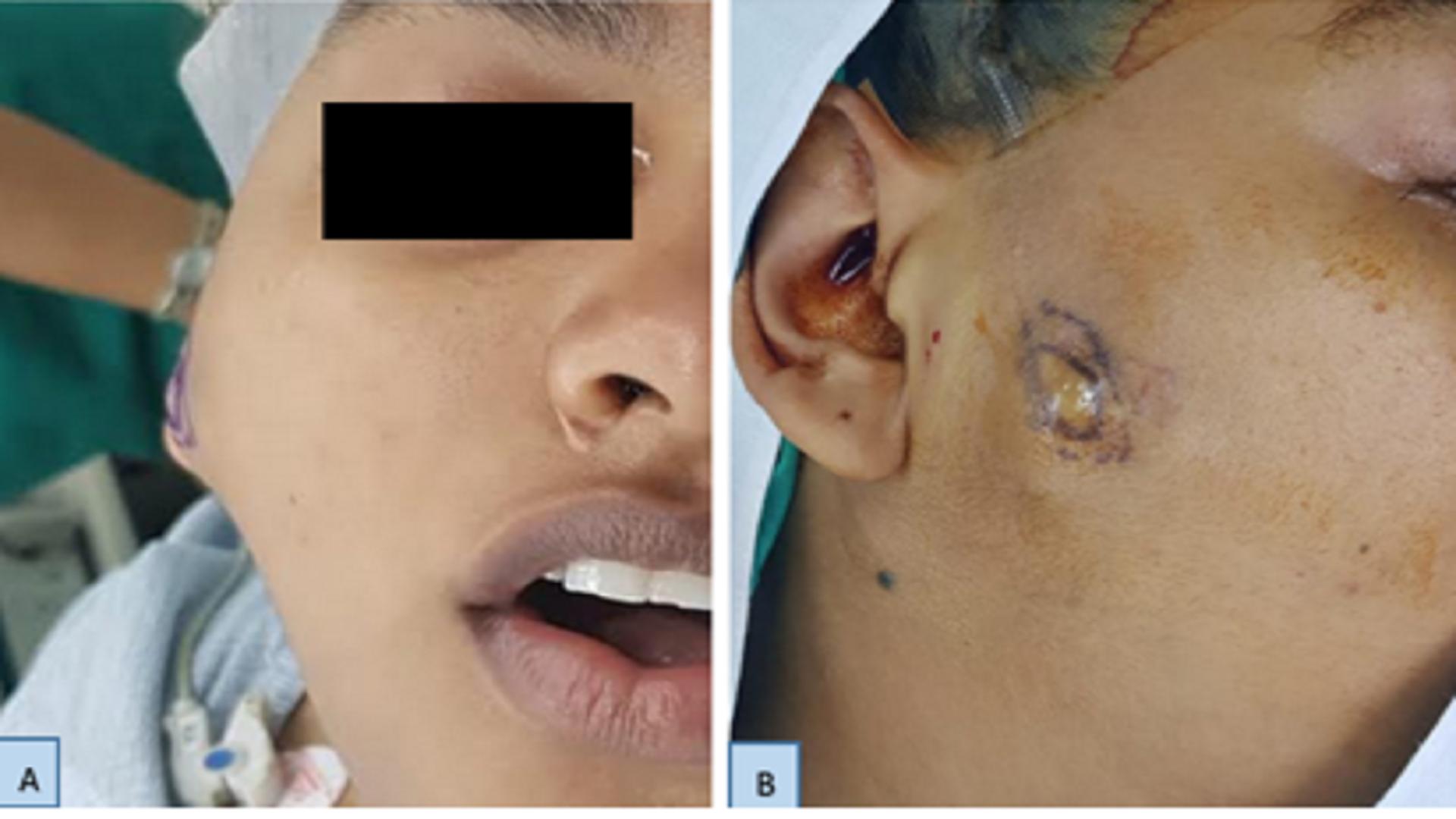 A Cutaneous Schwannoma Presenting As a Parotid Tumour