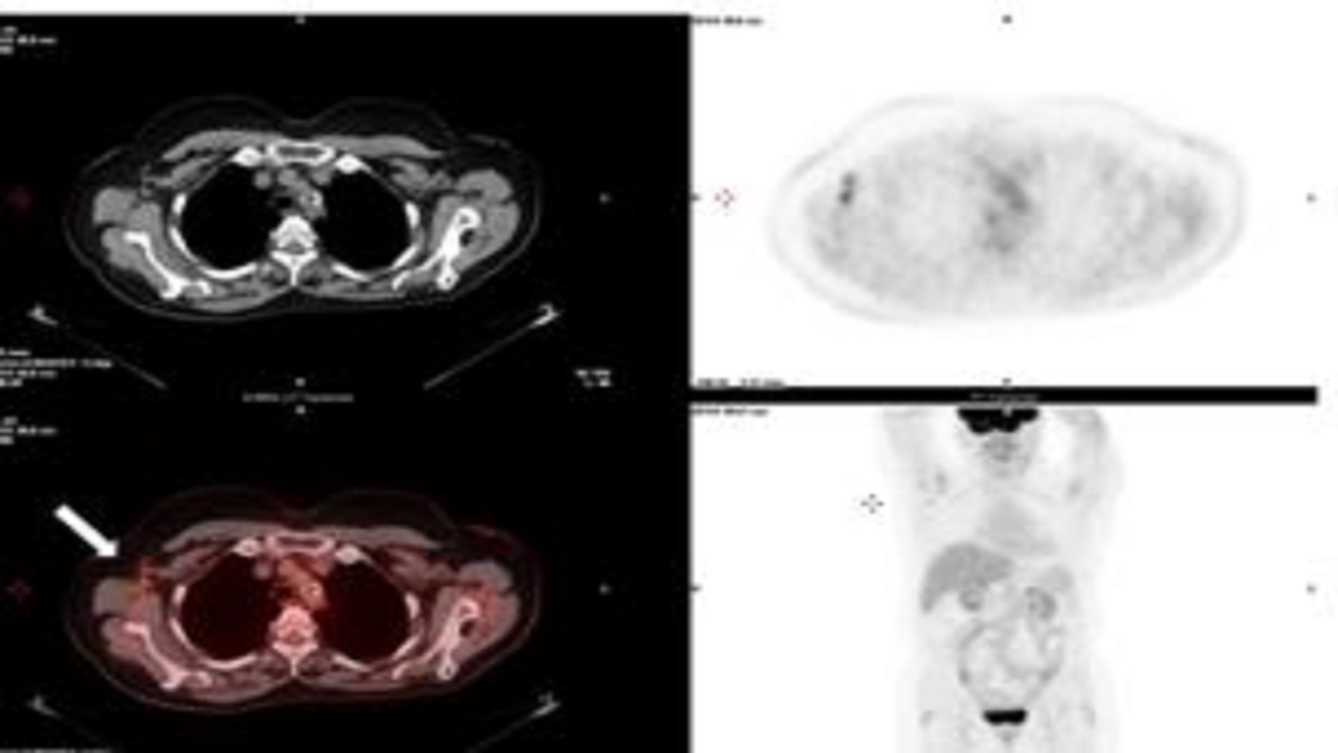 Reactive Axillary Lymphadenopathy to COVID-19 Vaccination on F-18-FDG PET/CT, F-18- Choline PET/CT and Ga-68 DOTATOC PET/CT Scans in Cancer Patients