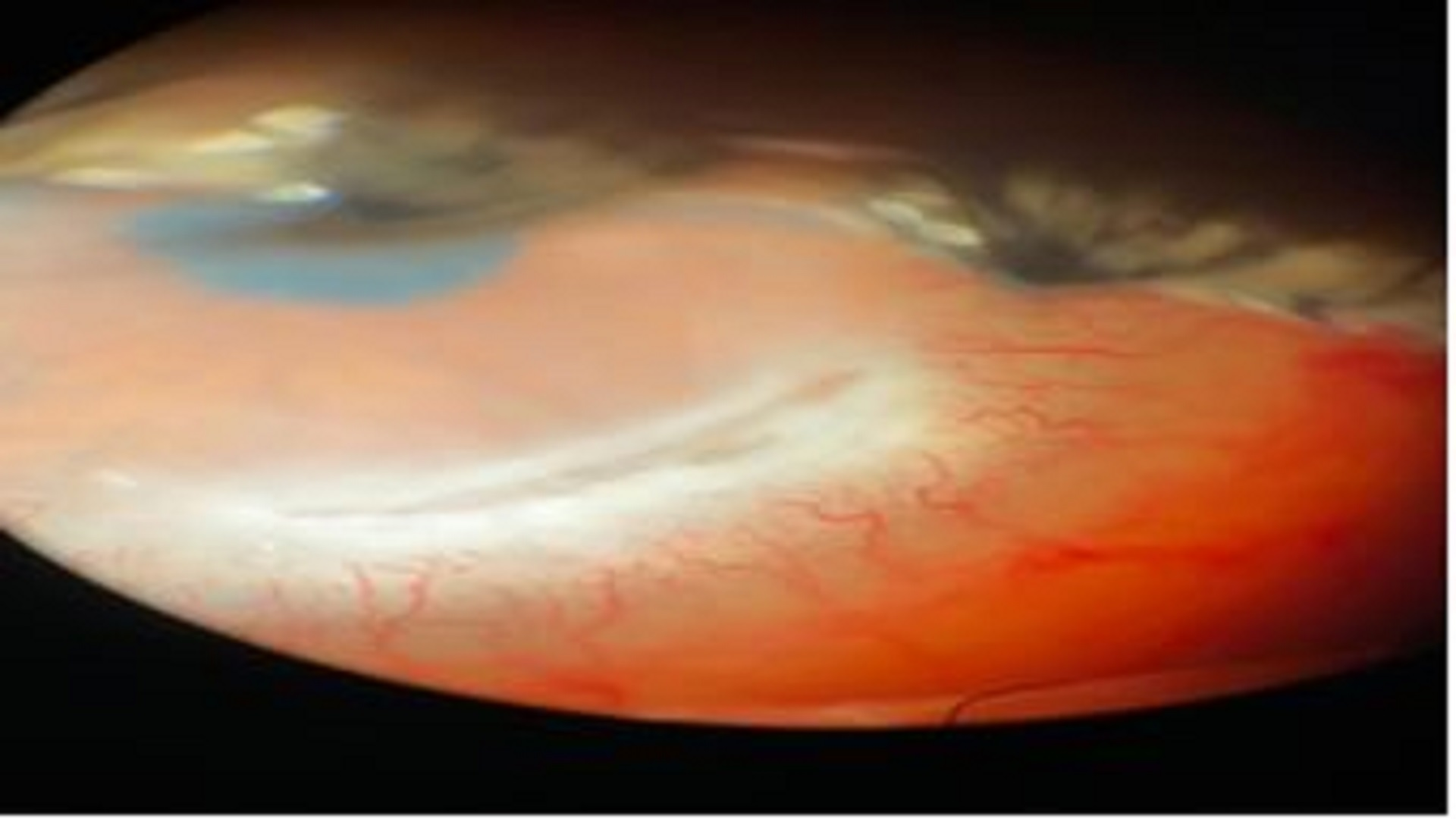 Conjunctival Resection for Peripheral Ulcerative Keratitis