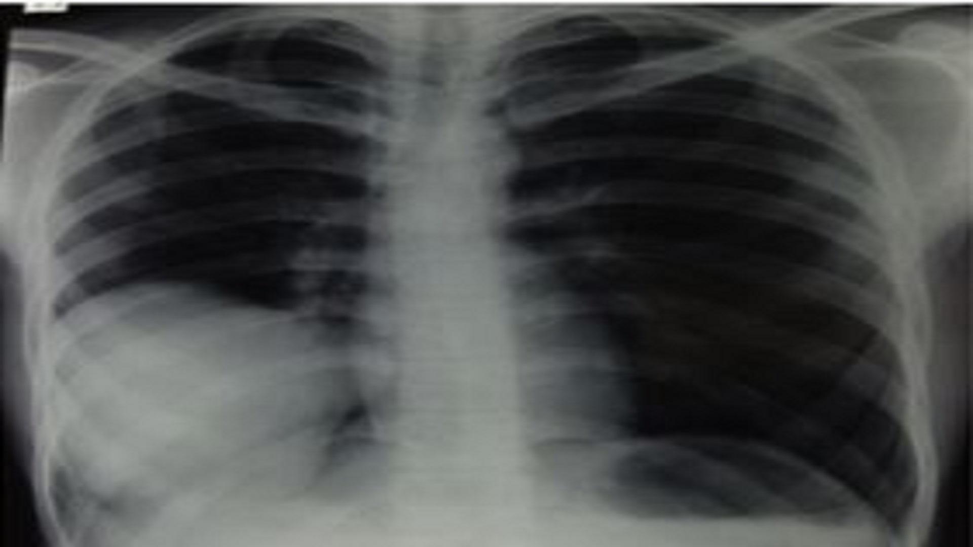 Primary Pulmonary Synovial Sarcoma- A Case Report